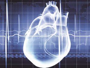 Conhecimento Eletrocardiográfico