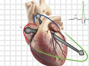 Eletrovetorcardiograma na Prática Clínica