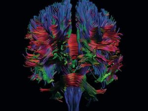 Neurorradiologia Diagnóstica