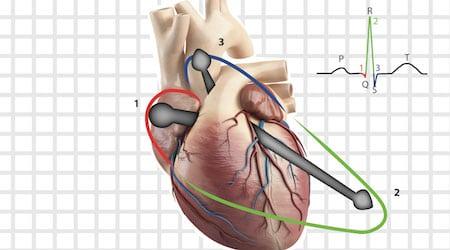 eletrovetorcardiográficos