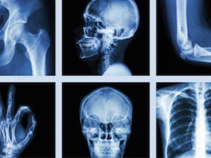 Introdução a Radiologia e Anatomia Aplicada a Radiologia