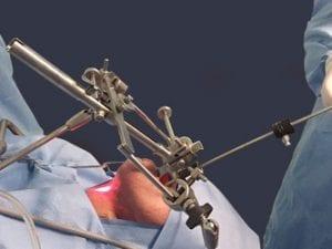 Técnica de Cirurgia Transoral 2 450x250px SITE